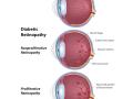 diabetic-retinopathy-blindness