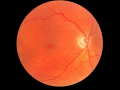 glaucoma-medical-image-of-fundus-retina-showing-optic-disc-cupping-jpg