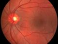 retina-optic-nerve-and-macula-jpg