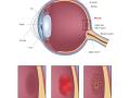 eye-macular-degeneration-blindness