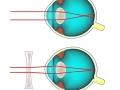 glasses-refraction