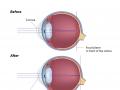 lasik-surgery-for-myopia-nearsightedness