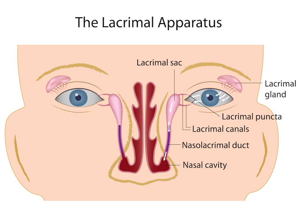 Lacrimal Duct Obstruction