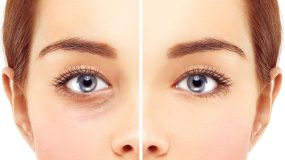 Ophthalmic Plastic Surgery in Children & Adults