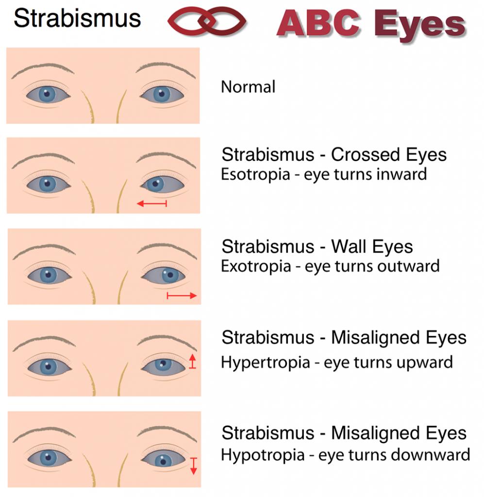 Strabismus Surgery ABC Eyes