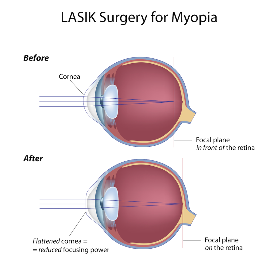 Lasik Surgery For Myopia Nearsightedness Pediatric