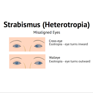 Esotropia Strabismus misaligned eyes