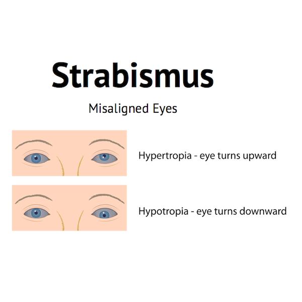 strabismus hypertropia hypotropia