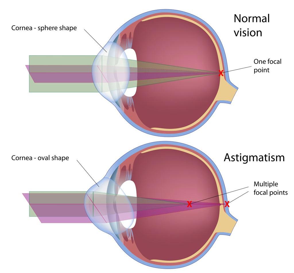 astigmatismvision-eyes