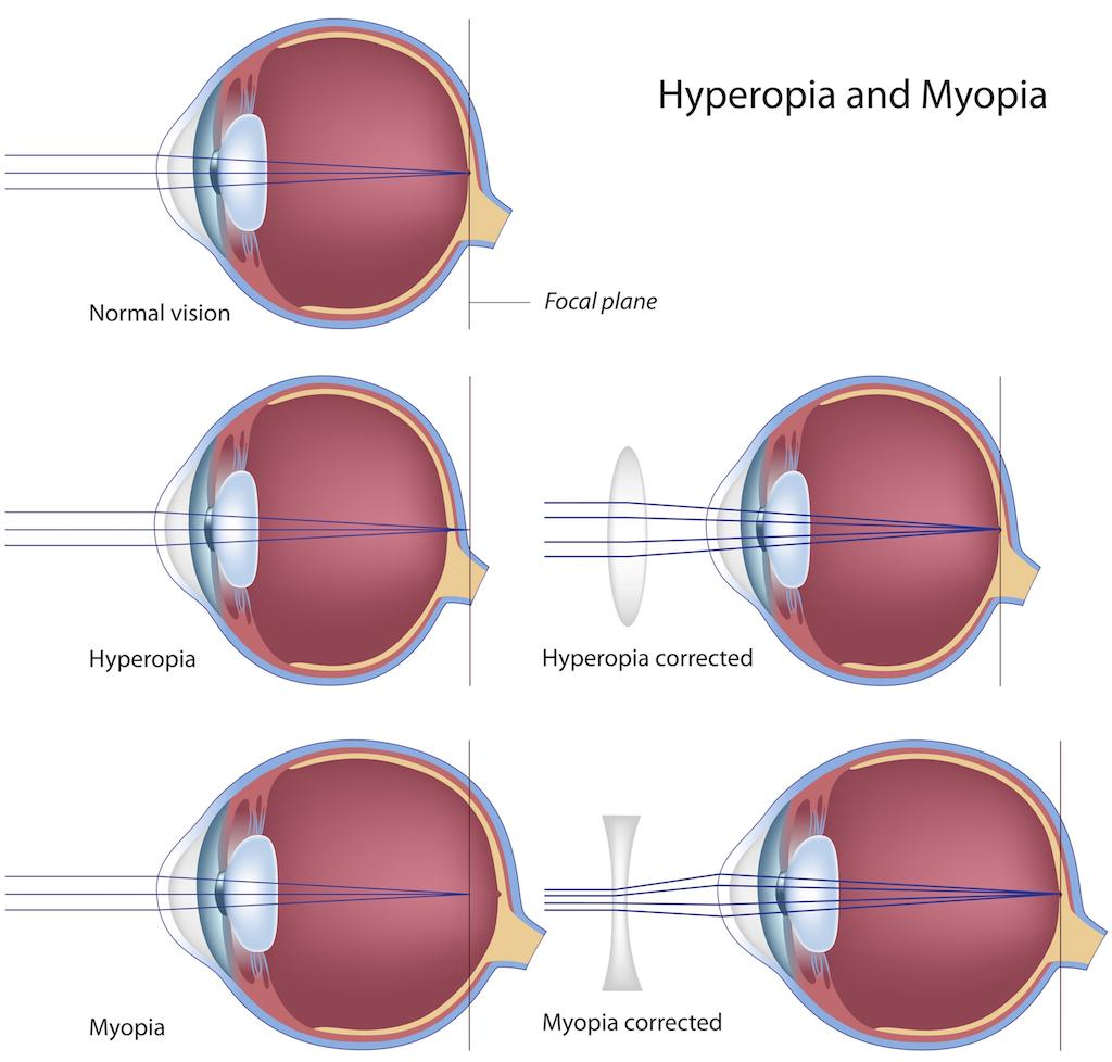 Atropine treats Myopia (near-sightedness)