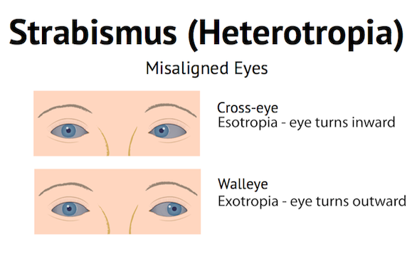 cross-eye and walleye image