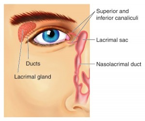 Blocked Tear Duct (Nasolacrimal Duct Obstruction)