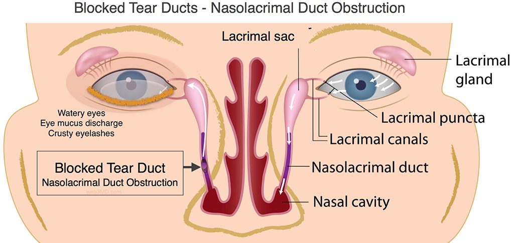 Blocked Tear Ducts (Nasolacrimal Duct Obstruction)