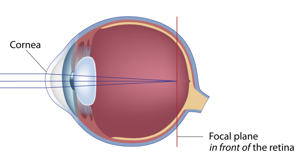 myopia nearsightedness
